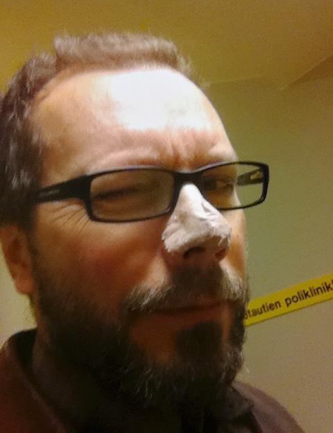 Kirjoittaja tietää kerrankin mistä puhuu. Silmänisku kameralle oman ihosyövän poisto-operaation yhteydessä.